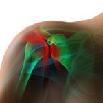 5 Most Common Reasons for Shoulder Pain